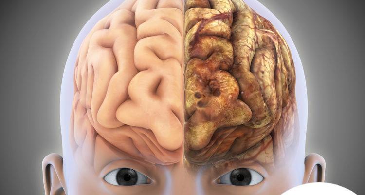 que-puede-alterar-a-los-neurotransmisores